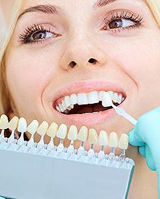 שיניים קבועות תוך שבוע