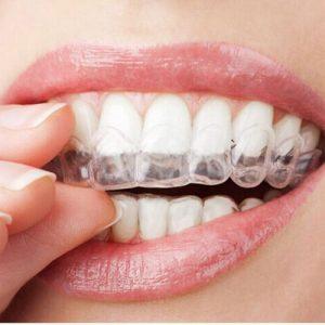 הלבנת שיניים עם סד