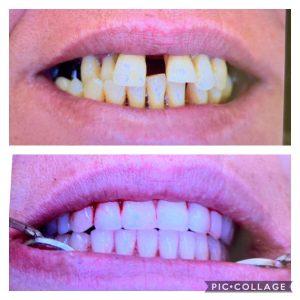 שיקום הפה ביום אחד לפני ואחרי תוך 3 שעות