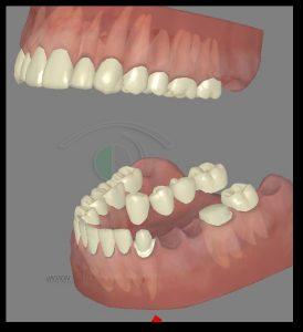 השלמת שיניים באמצעות גשר חרסינה