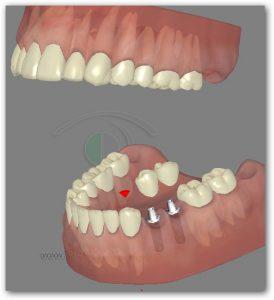 השלמת שיניים על ידי שתלים