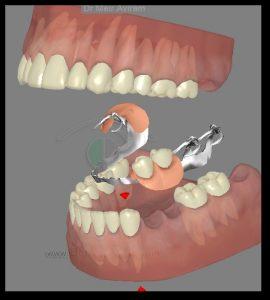 השלמת שיניים על ידי תותבת